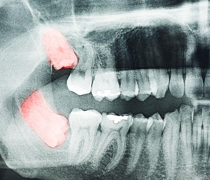 Χειρουργική Στόματος