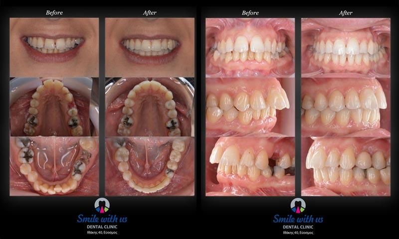 Συνολική αποκατάσταση του στόματος ακολουθώντας συγκεκριμένες θεραπείες και χρονοδιάγραμμα (συνδυασμός ειδικοτήτων)