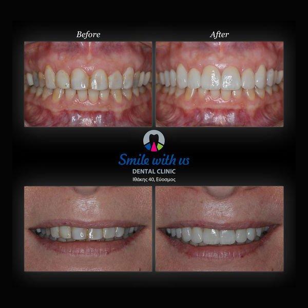Αντικατάσταση παλιών & δυσχρωματικών όψεων ρητίνης με όψεις πορσελάνης στα 6 πρόσθια δόντια σε συνδυασμό με επένθετα πορσελάνης στα οπίσθια δόντια